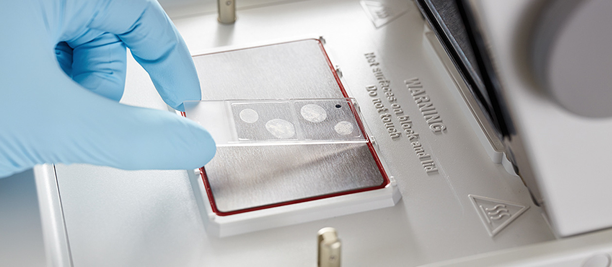 In-Situ PCR