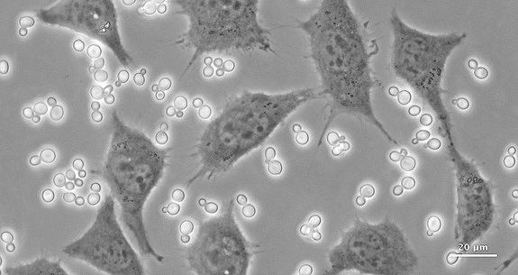 Yeast contamination - Cell Handling Eppendorf